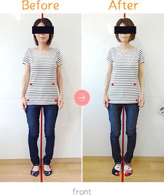産後骨盤矯正Before→AfterFront01