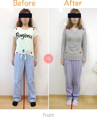 産後骨盤矯正Before→AfterFront03