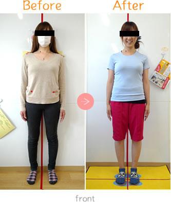 産後骨盤矯正Before→AfterFront05
