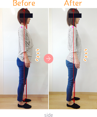 産後骨盤矯正Before→AfterSidet04