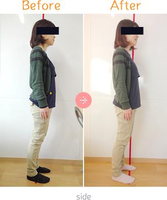 産後骨盤矯正Before→AfterSidet05