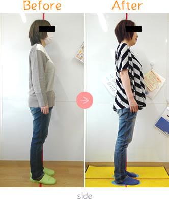 産後骨盤矯正Before→AfterSidet06
