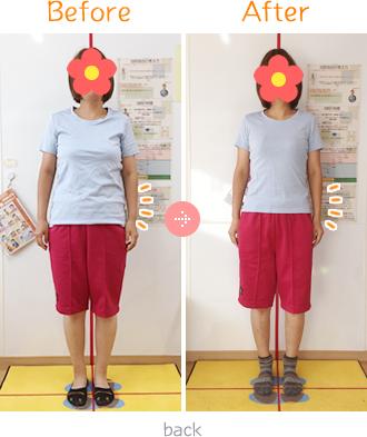 上伊那郡中川村なかがわ整骨院の体脂肪ダイエットBefore→AfterFront01
