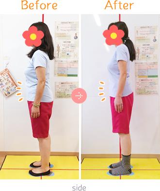 上伊那郡中川村なかがわ整骨院の体脂肪ダイエットBefore→AfterSidet03