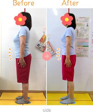 上伊那郡中川村なかがわ整骨院の体脂肪ダイエットBefore→AfterSidet05
