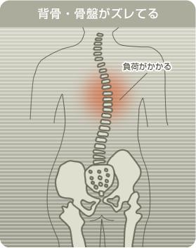 背骨・骨盤がズレてるイラスト