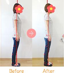 上伊那郡中川村なかがわ整骨院の産後骨盤矯正Before&After01